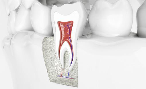 zahnarztpraxis-neuruppin_leistungen_endodontie